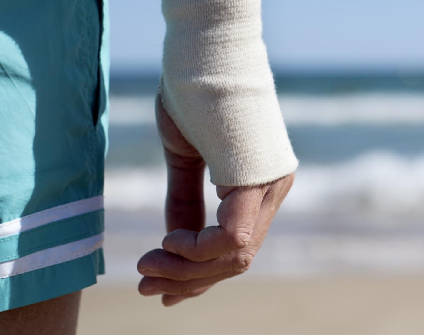 Mann in Shorts mit Verband am rechten Handgelenk am Strand